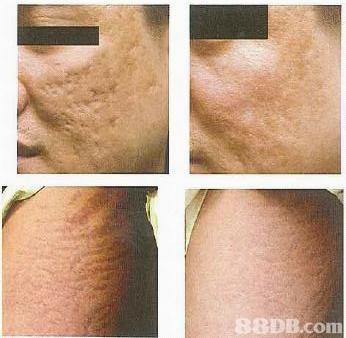 8DB.conm  skin